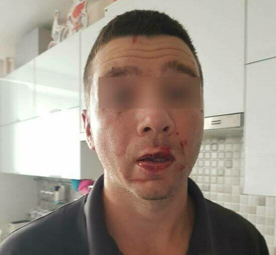 У Алексея диагностировали сотрясение головного мозга | Фото: предоставил пострадавший